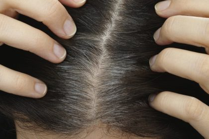 thinning women's hair
