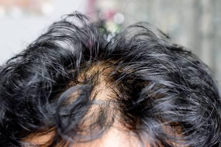Does An Oily Scalp Cause Hair Loss Touchups Salon